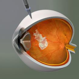 Ophthalmic Edge post featuring Anti-VEGF Therapy